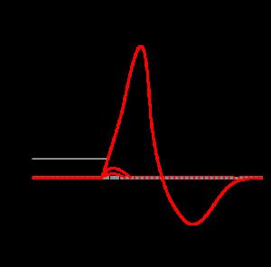 action-potential-diagram